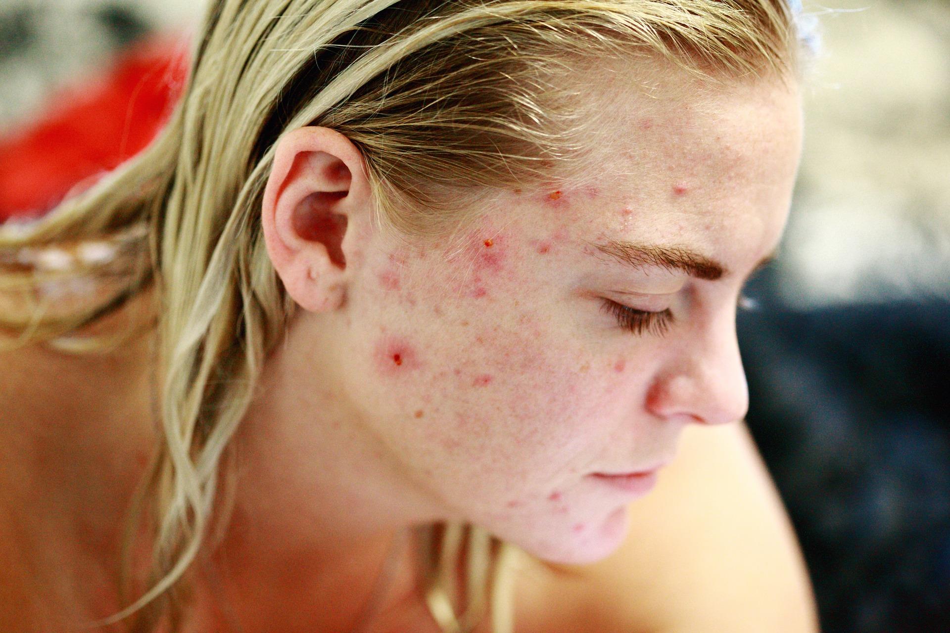 ragazza affetta da acne